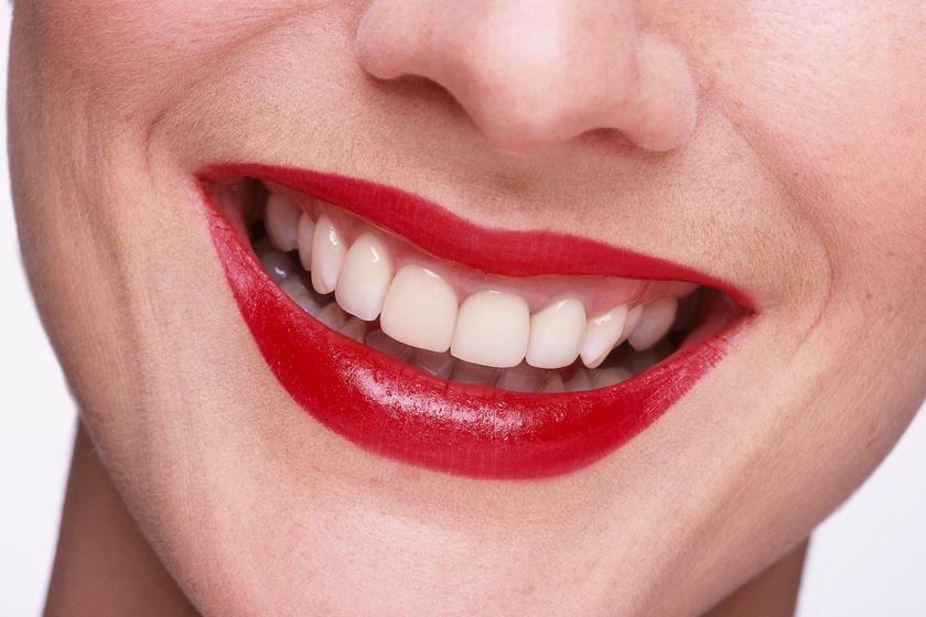 A fogorvos szerint ezek az ételek hófehérré teszik a fogakat - Az íny is egészséges lesz tőlük