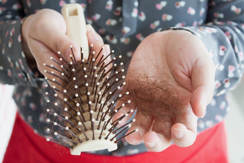 Pajzsmirigy-alulműködésre utalhat a hajhullás, a hajszárazság, és a foltokban ritkuló haj is gyakori kísérő tünete a betegségnek.