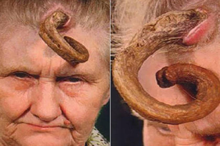 """Ennek az idős asszonynak húsz évig nőtt a """"szarva"""". Amikor leoperálták, már 17 centi hosszú volt."""