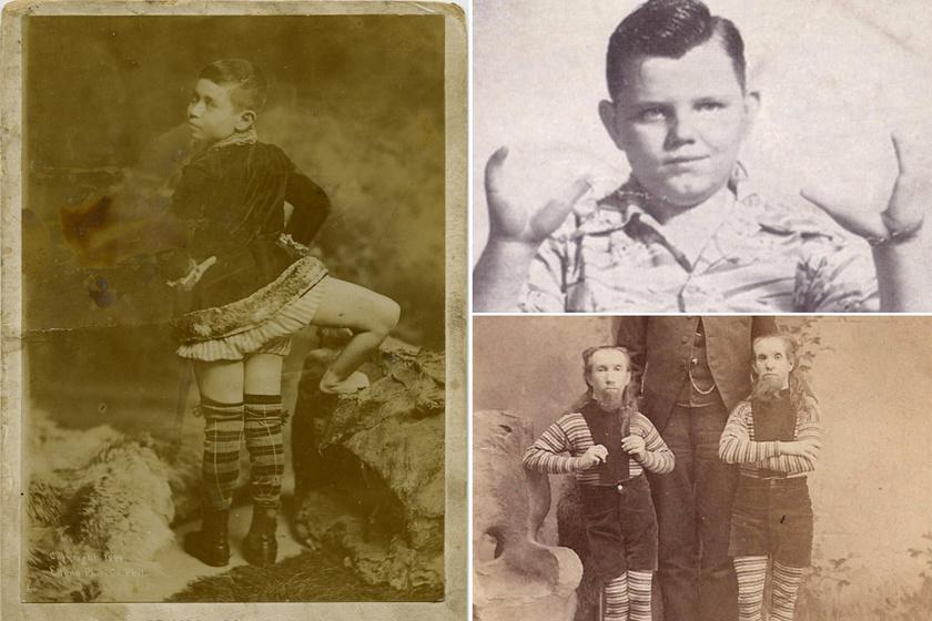 Minden idők legbizarrabb cirkuszi mutatványai: akkor még mulattak a háromlábú fiún