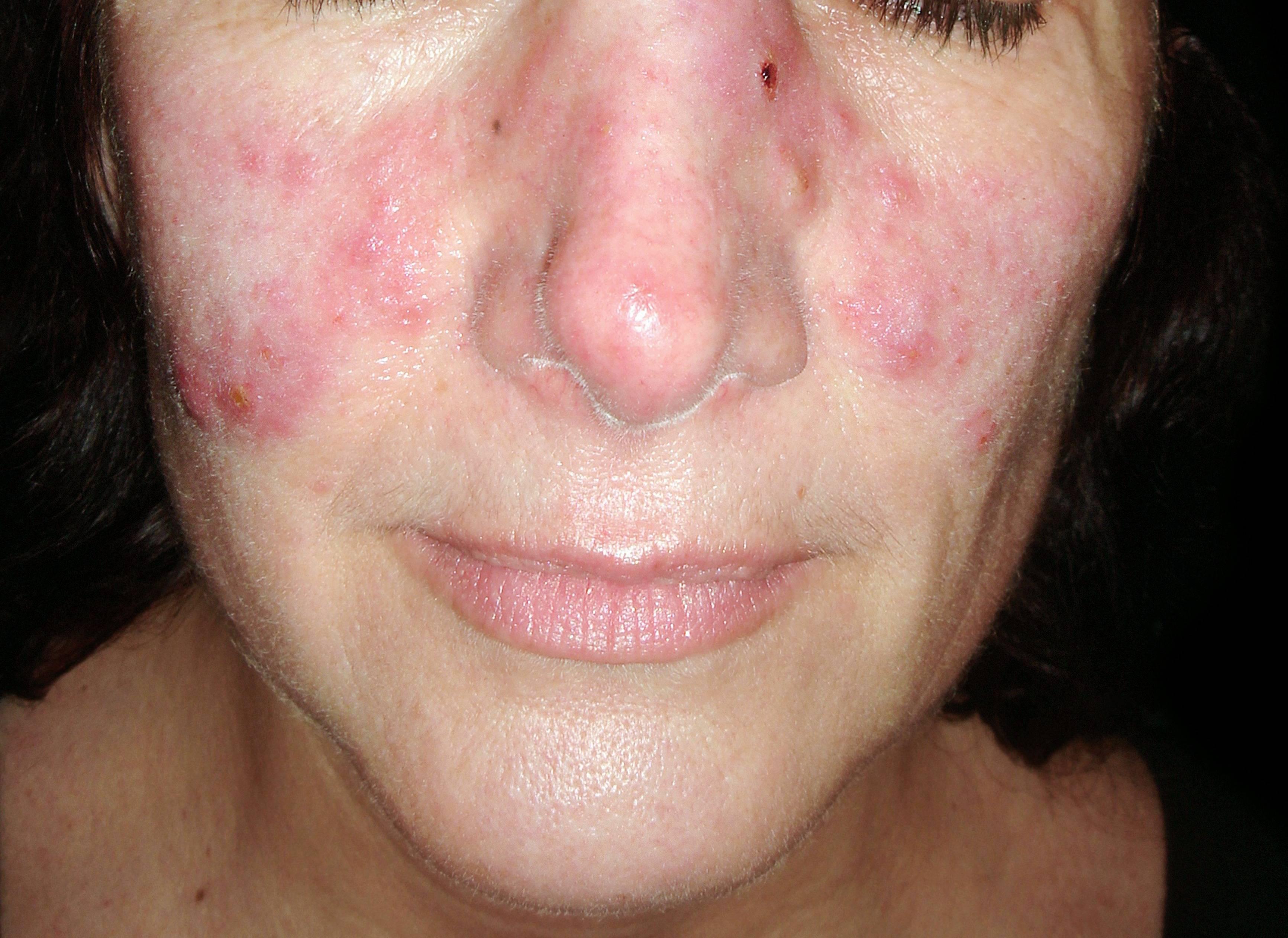 barbera pikkelysömör kezelése krém száraz bőrre pikkelysömörrel