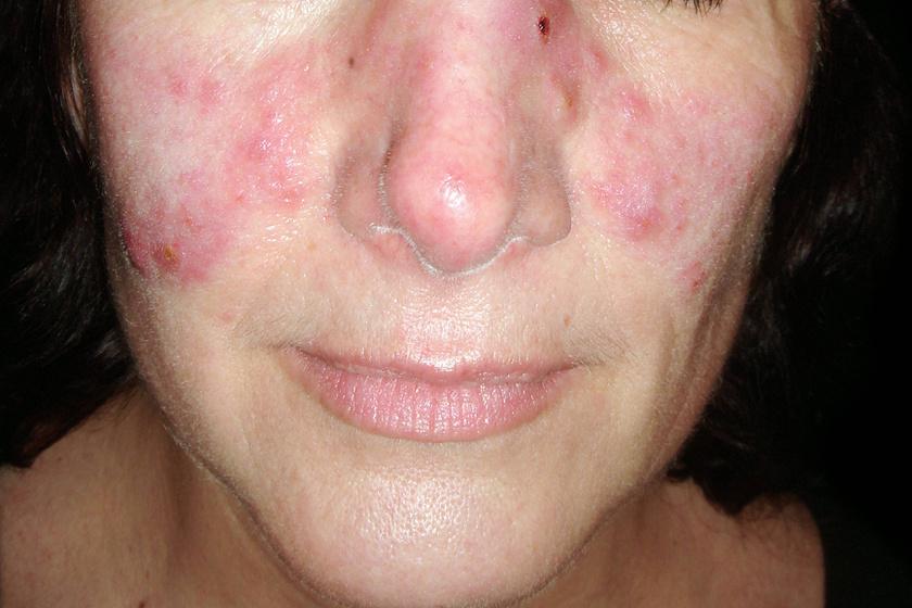 A könyökön, a térden, a fejbőrön vagy a háton felbukkanó piros foltok cöliákiát, azaz lisztérzékenységet is jelezhetnek. Míg az orrnyergen vagy az arccsonton megjelenő, pillangóra hasonlító folt lupuszra figyelmeztethet.