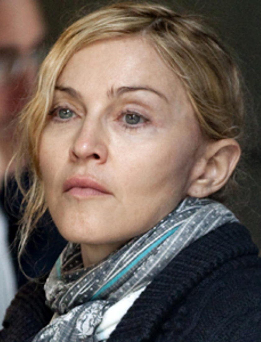 Madonnán meglátszik a plasztika, de arca még őrzi eredeti csinos vonásait.
