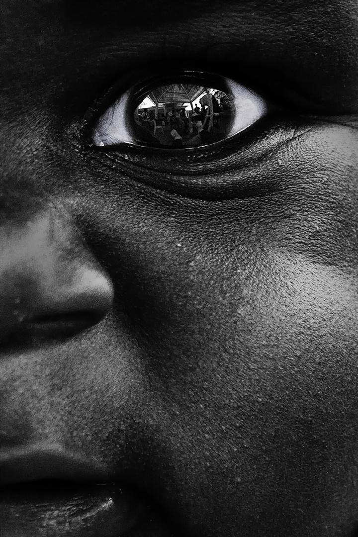 """Horvai Valér: Live AIDs – Harc a túlélésért (sorozat) / Szemtől szemben a halállal // """"A sorozat képei afrikai AIDS központokban, kórházakban és azok környékén készültek, ahol önkéntesként dolgoztam, vagy megfordultam. Az AIDS központokat százával látogatták a HIV fertőzöttek, szinte egy egész generáció tűnt el a betegség miatt. A mai napig nincsenek pontos adatok arról, hogy Afrikában az emberek hány százaléka fertőzött. 2016-ban 37 millióra becsülték a HIV-vel fertőzöttek számát, amelyből körülbelül 20 millió Afrikában él. 76 millió ember fertőződött meg a HIV-vel a járvány kezdete óta és 35 millió ember halt meg az AIDS-szel összefüggő betegségek miatt. 2017 júniusáig közel 21 millió HIV-fertőzött ember jelentkezett antiretrovirális terápiára. A tuberkulózis továbbra is a leggyakoribb halálozási ok a HIV-fertőzöttek körében. A segélyprogramoknak köszönhetően az új HIV fertőzöttek száma évről évre csökken a 2000 óta."""""""