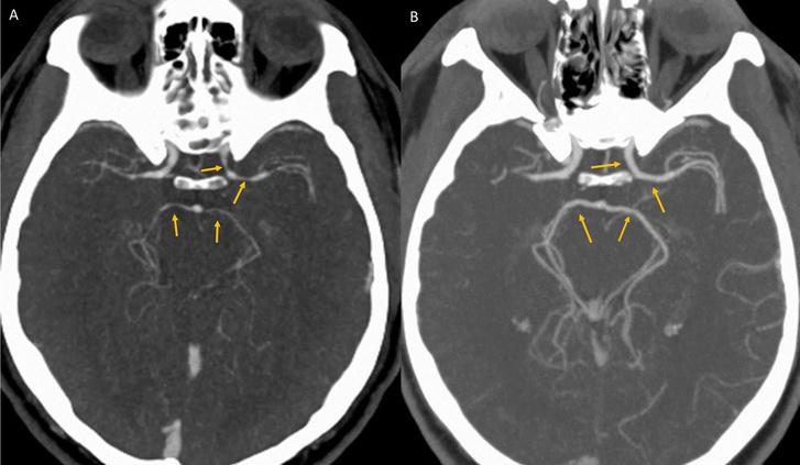 CT felvételen jól látszanak az összeszűkült agyerek