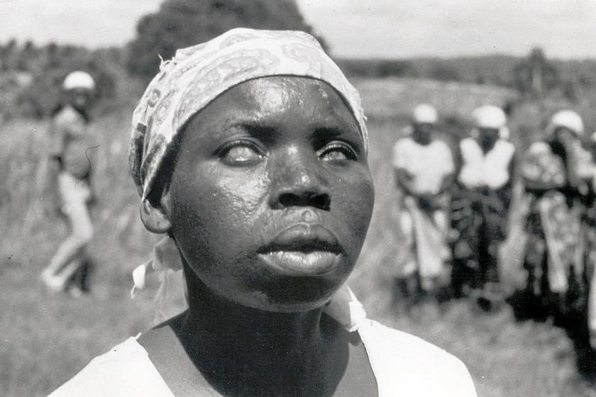 Világjárványok idején a reménytelenség lett az úr: a feketehimlő-járvány halálozási aránya nagyon magas volt. A túlélők örökre hordozták a betegség nyomait: ez a zairei nő teljesen megvakult.