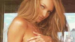 Candice Swanepoel bemutatja: így néz ki meztelenül egy terhes Victoria's Secret modell