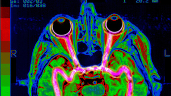 Felderítik a látás és a tapasztalat agyi kapcsolatát