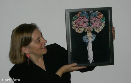 Illusztráció: egy amerikai tudósnő gyapjúból készítette el az agy hű mását