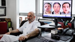Ismét arcátültetést végeztek egy francia férfin