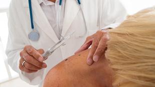 A rák új ellenszere: a mesterséges anyajegy
