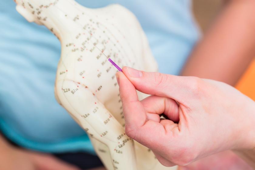 akupunktura-babu