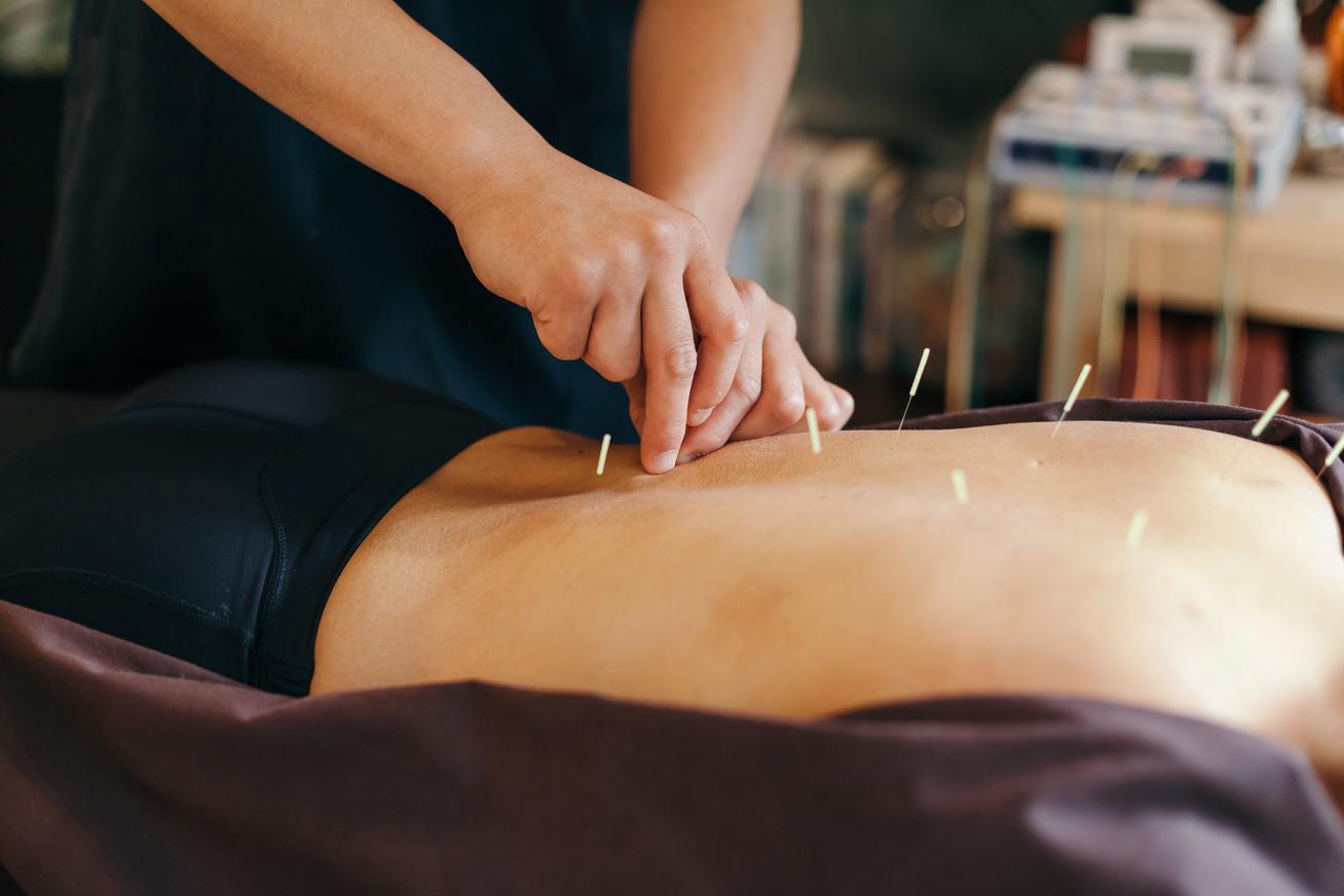 akupunktura-tuk