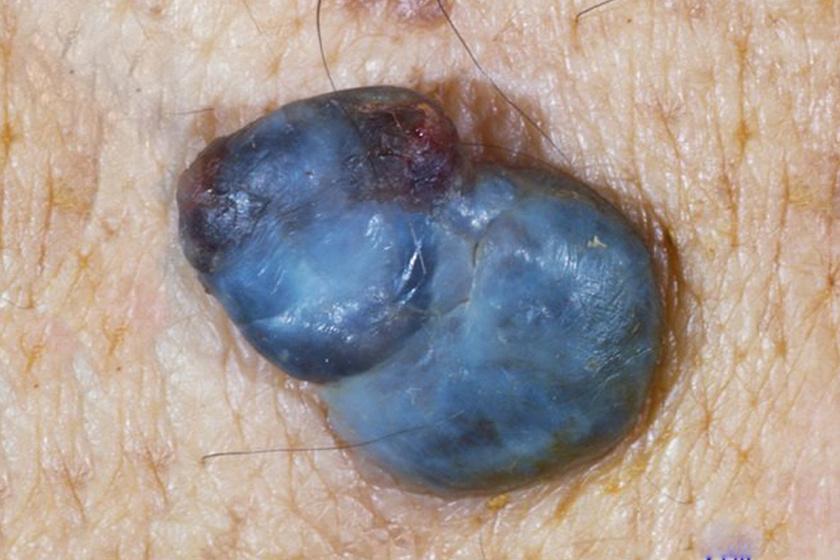 Az UV-sugárzás talán legsúlyosabb következményei a bőrrák és a melanoma. A kettő nem ugyanaz: a bőrrák a bőr saját sejtjeinek rosszindulatú daganata, míg a melanoma a bőrben lévő, ám idegi eredetű pigmenttermelő sejtekből alakul ki. A képen a legagresszívabb bőrdaganattípus, a nodularis melanoma látható.