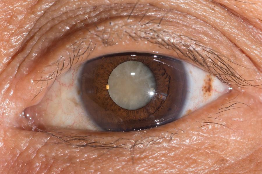 aktivitás és figyelem látássérüléssel