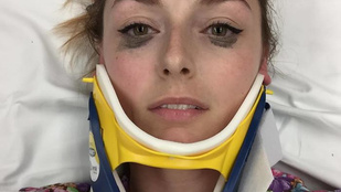Beauty percek: a szemkihúzó, ami autóbaleset után és 8 óra sürgősségi ellátás után is tökéletesen tart