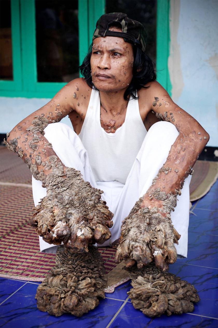 Az indonéz Dede Koswarát faembernek nevezik, mert egy ritka génhiba, a Lewandowsky-Lutz-diszplázia miatt egy HPV-fertőzéstől a bőrére vastag, elszarusodott réteg nőtt.