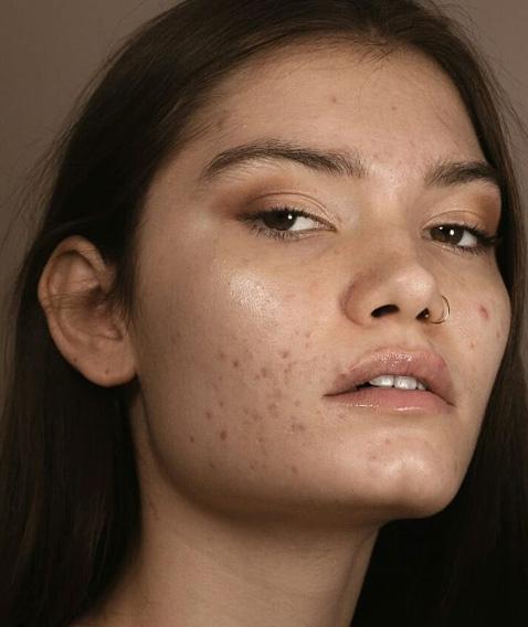 -– A társadalom azt hiteti el mindenkivel, hogy a bőrünknek tökéletesen tisztának és hibátlannak kellene lennie - mondta a fotós a képei kapcsán.