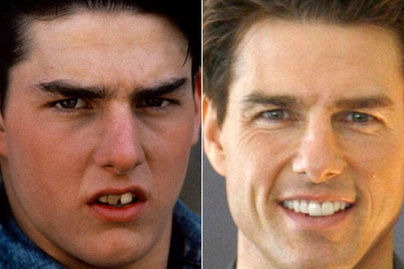 tom-cruise kepe