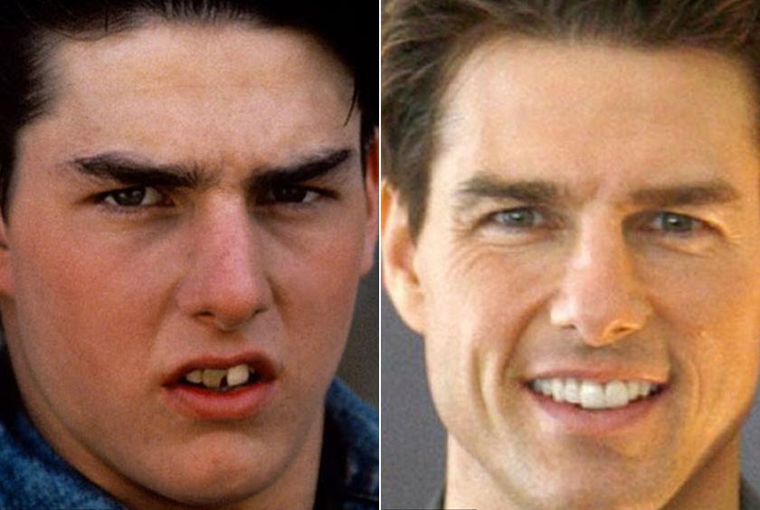 Tom Cruise sokat költhetett fogorvosra, mire igazán csábítóvá vált a mosolya.