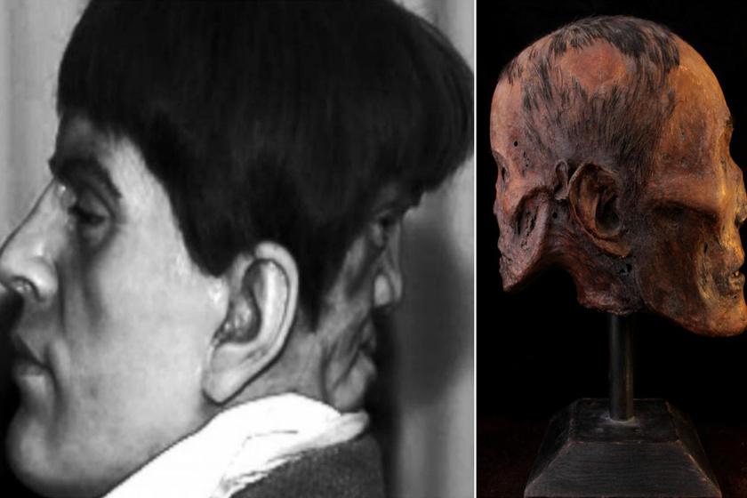 A bal oldalon az Edwardról készült viaszmás, a jobb oldalon pedig egy koponyahamisítvány látható.