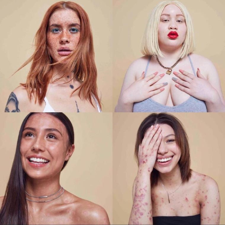 Sőt, sok, a lányokhoz hasonló bőrbetegségben szenvedő nő egyenesen azt állította, hogy a képek láttán ismét visszanyerte az önbizalmát, ami, lássuk be, nem elhanyagolható tényező