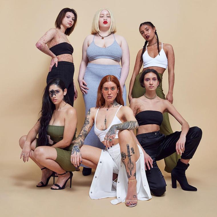 """A brit MissGuided nevű divatcég tökéletesen alkalmazkodik a manapság egyre nagyobb teret hódító, """"mindenki fogadja el magát olyannak, amilyennek született"""" felfogáshoz.A #KeepOnBeingYou-mozgalomhoz kapcsolódó, #InYourOwnSkin (~ ASajátBőrödben) hashtaggel ellátott, legutóbbi kampányukat is ennek szellemében indították útjára, hat különleges külsejű nő szerepeltetésével."""