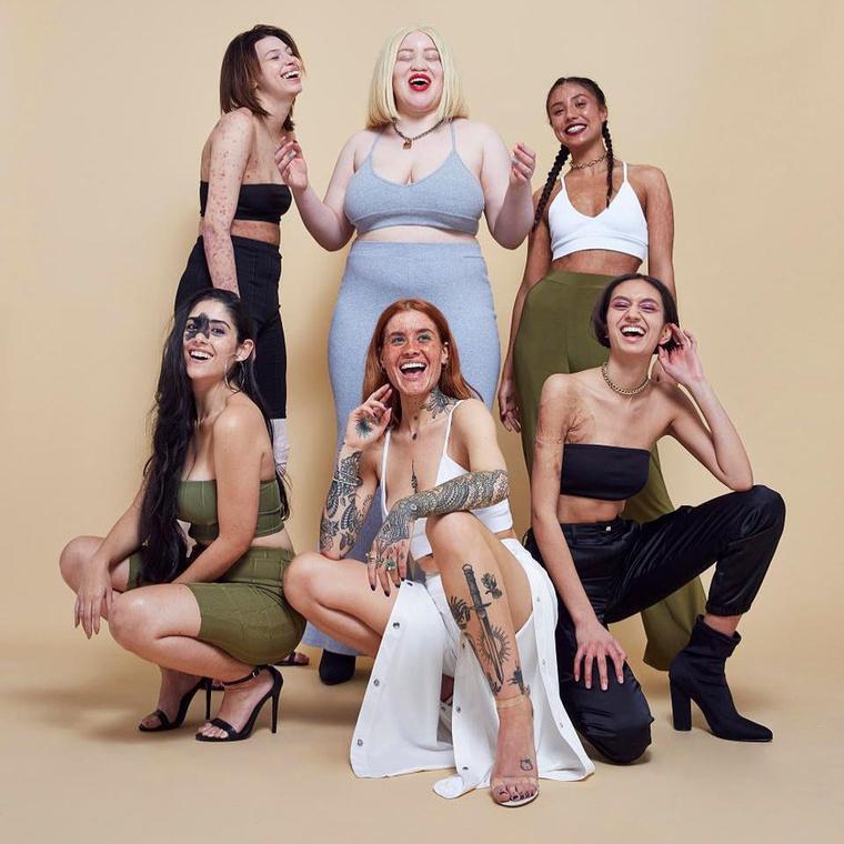 Mondanivalójukat tapasztalt és tapasztalatlan modellekről készült fotósorozattal szemléltették, akiknek a testét feltűnő bőrhibák díszítik