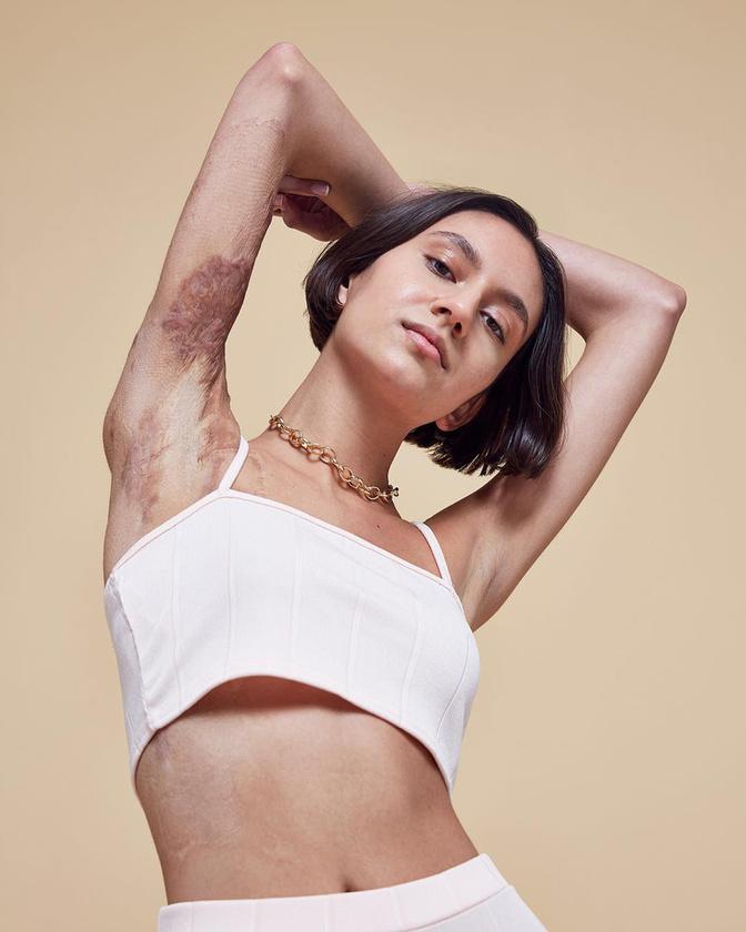 Isabella 17 éves kora óta viseli a testén egy tűzvész emlékeit, ugyanakkor reméli, hogy ez a fajta modellkedés némiképp felülírja az elcsúfított testről alkotott premisszákat