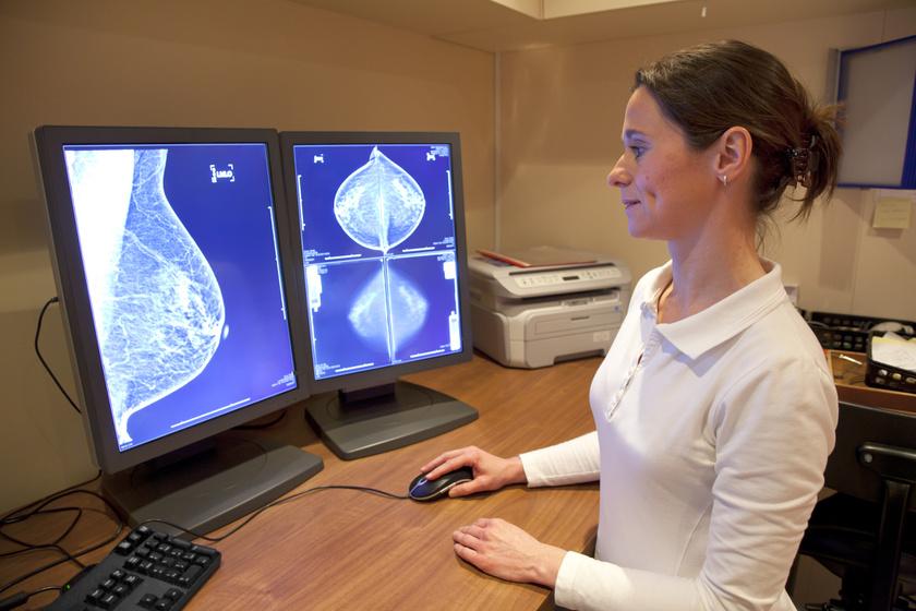 A mellrák új rizikófaktorát bizonyították: rengeteg nőt érinthet