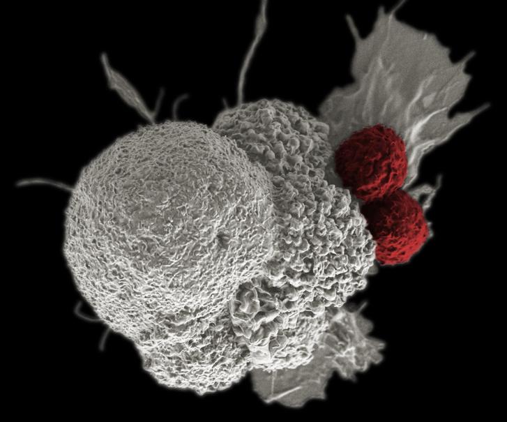 Daganatsejtet (fehér) támadó sejtölő T-sejtek (vörös) egy hamis színes elektronmikroszkópos felvételen