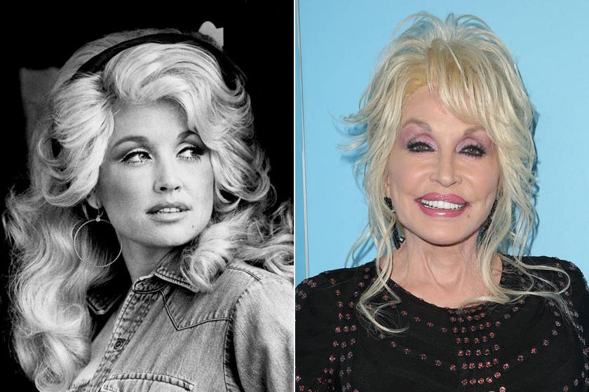 Dolly Parton 72 éves, de egy ránc sincs az arcán a plasztika miatt. Már nemigen hasonlít régi önmagára, de ő így szereti a külsejét.