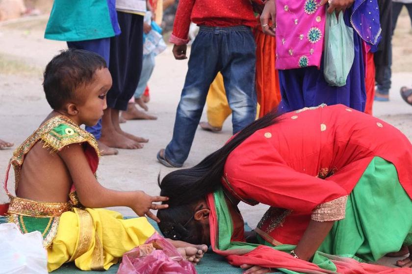 Hindu isten reinkarnációjának hiszik a 7 éves fiút: születési rendellenesség az oka