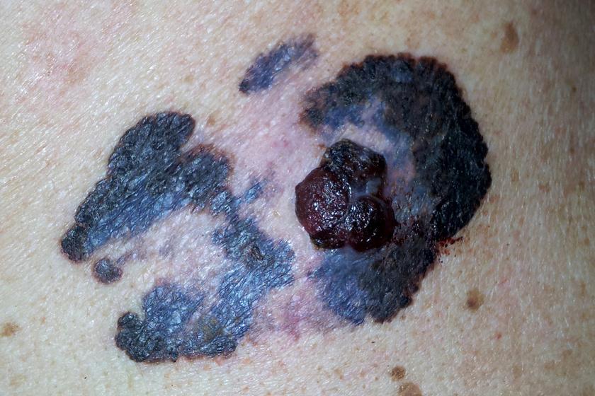 Így néz ki a melanoma.