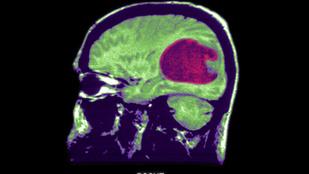 Védőoltás készült agydaganat ellen