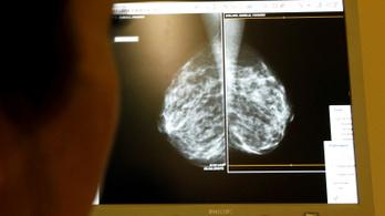 Először sikerült daganatmentessé tenni egy áttétes mellrákban szenvedő nőt