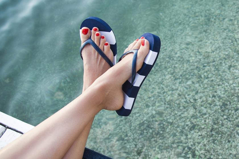 Ezért ne hordd túl sokat a flip-flop papucsot: durva problémákat okozhat a viselése