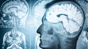 Ezért vagy okosabb másoknál: a neurológusok megtalálták a magas IQ alapját