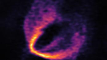 Három születő bolygót is észleltek egy új csillag körül