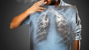 A tüdőrák 7 kevésbé ismert, szokatlan tünete