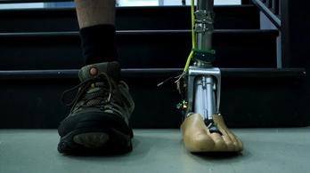 Terepen is jól jár az új robotprotézis
