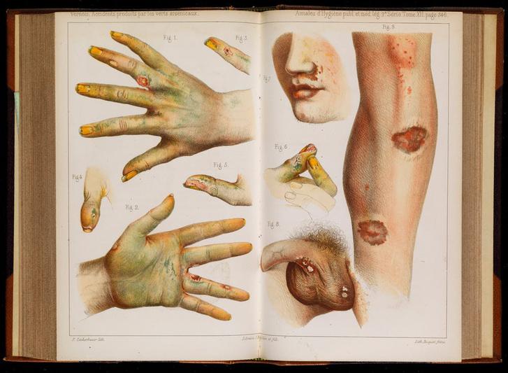 A zöldarzénmérgezés tünetei, 1859