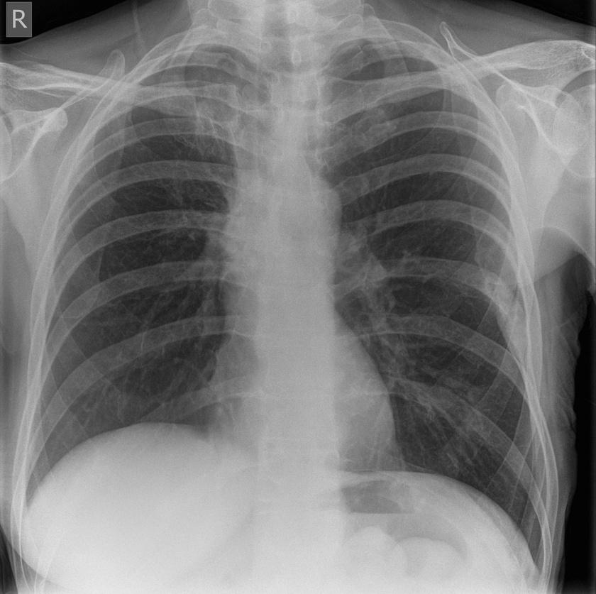 Ez a felvétel egy mellrákban szenvedő páciensről készült, akin masztektómiát kellett végezni.