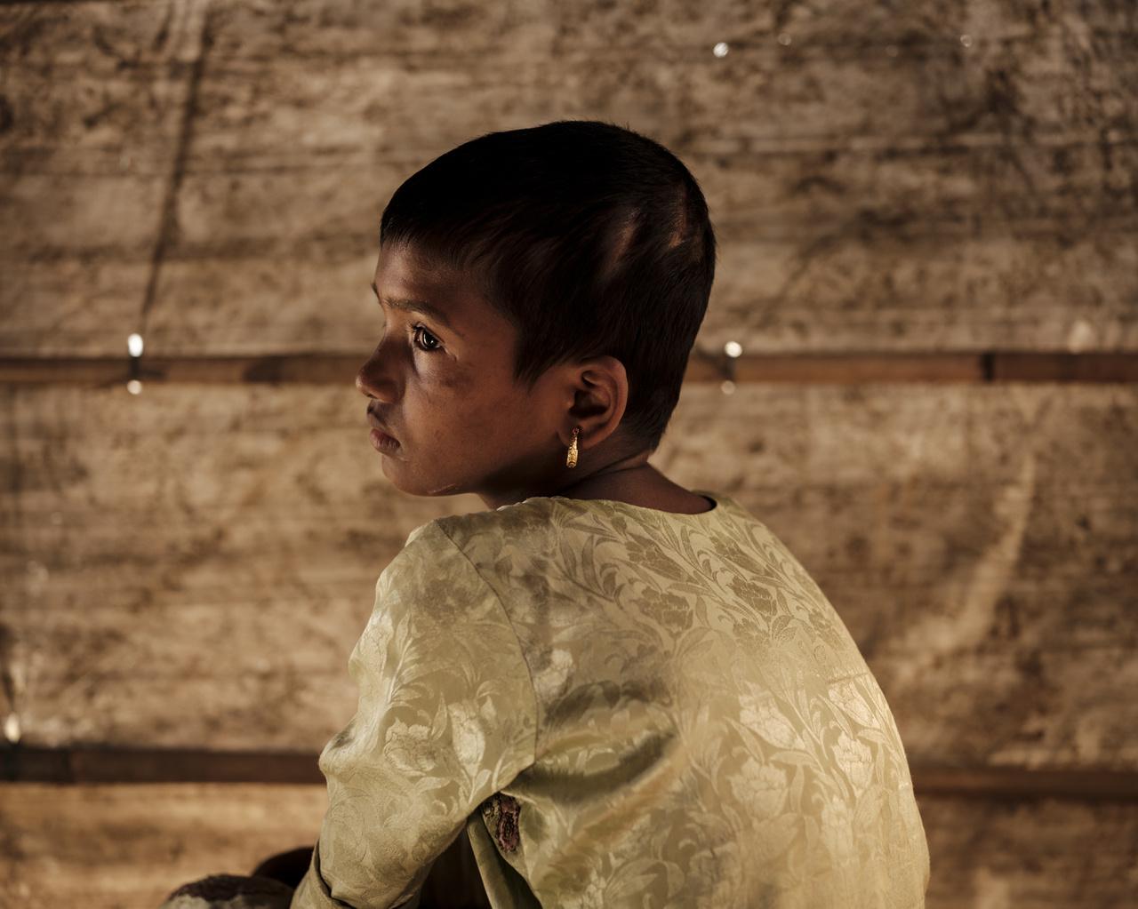A 10 éves Noor Kalimát csak megsebesítették a katonák - arcán és a fején több helyen láthatók vágásnyomok. Anyjával ketten élték túl a Tula Toli mészárlást a hatfős családjukból.