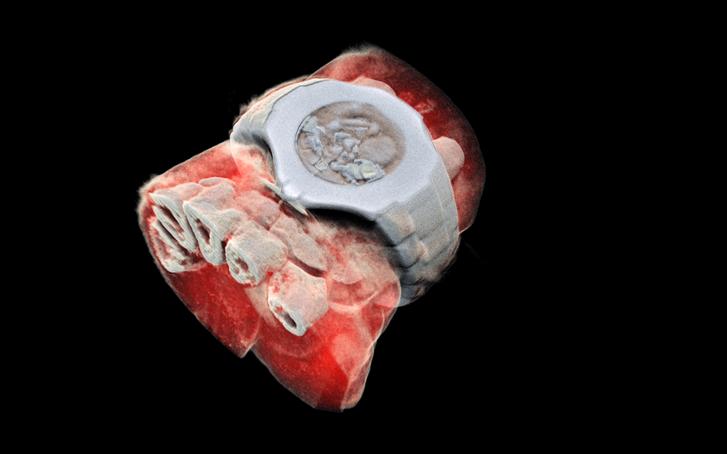 Egy csukló és a rajta lévő karóra röntgenképe.