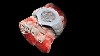 Az első színes 3D emberi röntgenfelvétel