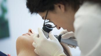Új vérteszt mutatja ki a súlyos bőrrákot