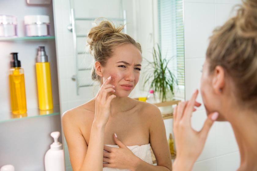 irritált bőr kipirosodás szárazság