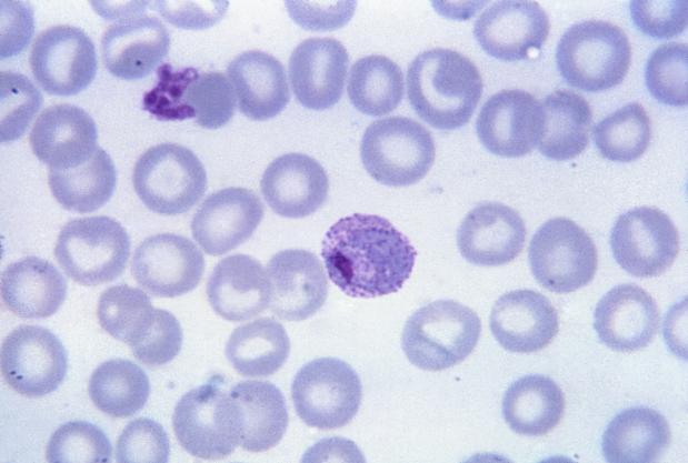 Plasmodium vivax parazita által terjesztett malária variáns