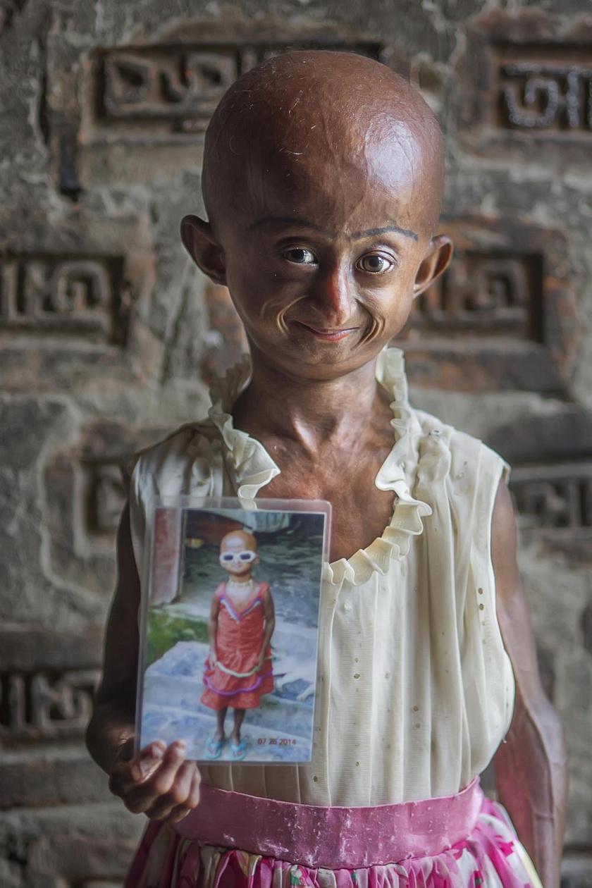 A kislány bőre és teste gyorsan öregszik: tízévesen a gyermeki lélek már nyolcvanéves testben él.